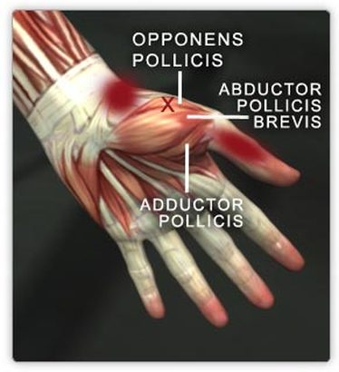 Abductor pollicis brevis Picture