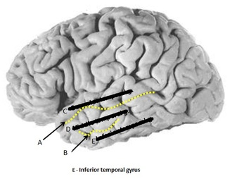 Inferior temporal gyrus Image