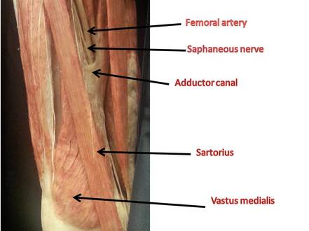 Adductor Canal Image